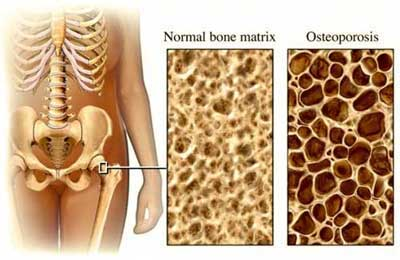 Osteoporotic vs Normal Bone